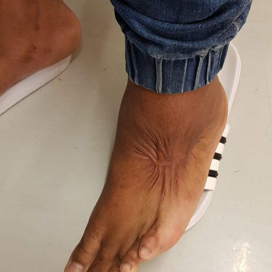 burns contracture on foot